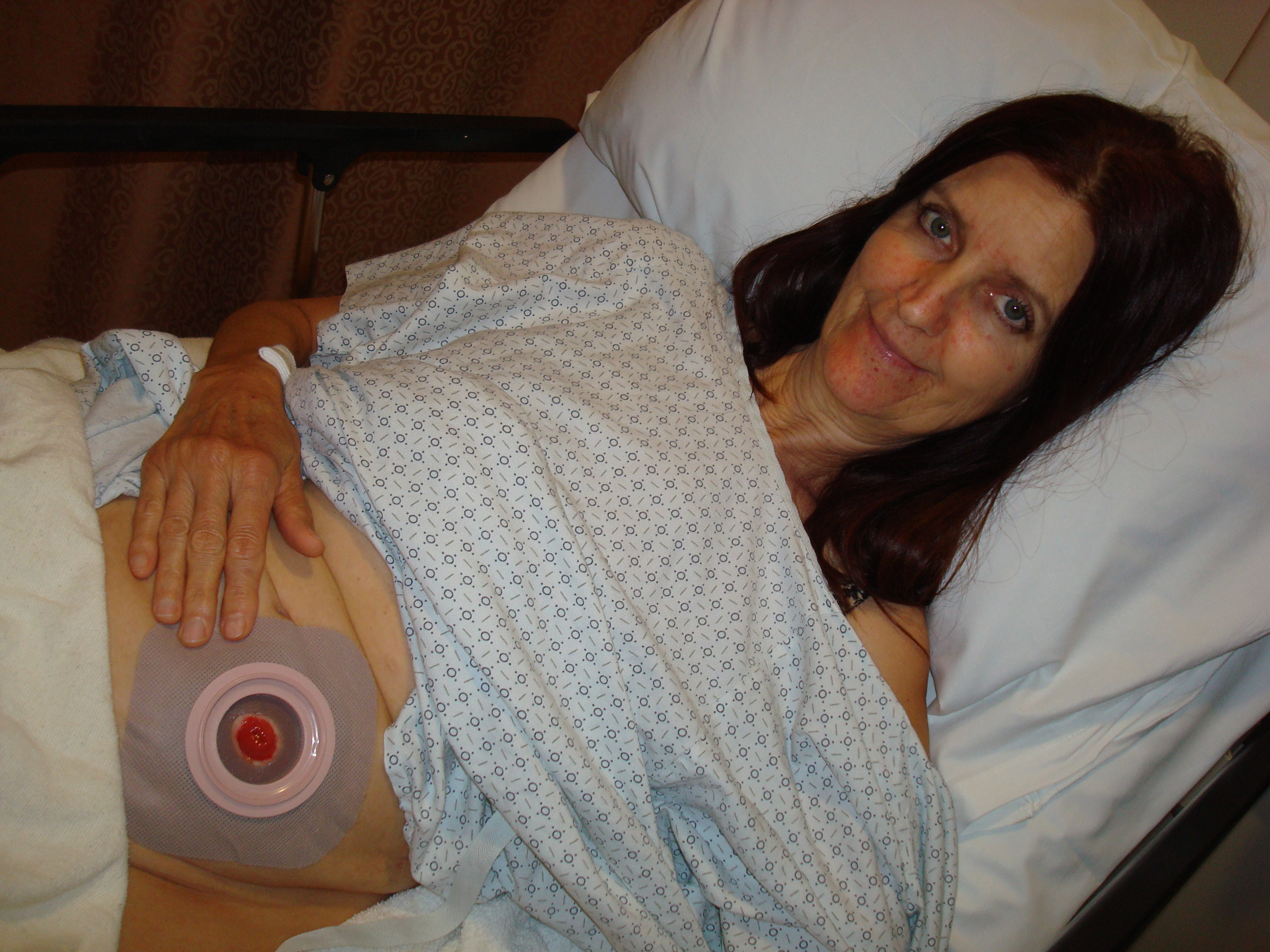 colonoscopy procedure position significantly - photo #18